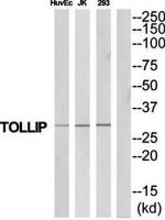 Western blot analysis of extracts from HuvEc/Jurkat/293 cells using TOLLIP antibody