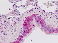 Immunohistochemical staining of paraffin embedded human lung respiratory epithelium tissue using IGFBP-3 antibody (primary antibody at 1:200)