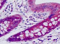 Immunohistochemical staining of paraffin embedded human small intestine tissue using HARS antibody (primary antibody at 1:200)