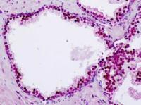 Immunohistochemical staining of paraffin embedded human prostate tissue using CDKL1 antibody (primary antibody at 1:200)