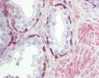 Immunohistochemical staining of paraffin embedded human prostate tissue using TRIM59 antibody (primary antibody at 1:200)