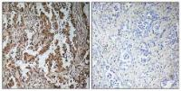 Immunohistochemical analysis of formalin-fixed and paraffin-embedded human lung carcinoma tissue using TBPL2 antibody