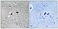 Immunohistochemical analysis of formalin-fixed and paraffin-embedded human brain tissue using TIGD3 antibody
