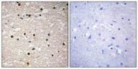 Immunohistochemical analysis of formalin-fixed and paraffin-embedded human brain tissue using p73 antibody