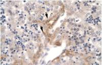 Antibody used in IHC on Human Liver cell lysates.
