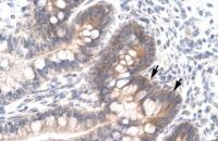 Antibody used in IHC on Human Intestine.
