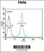Anti-CTDSPL Rabbit Polyclonal Antibody