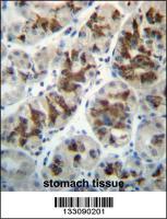 Anti-CTGF Rabbit Polyclonal Antibody (APC (Allophycocyanin))