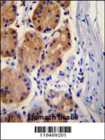 Anti-CTNB1 Rabbit Polyclonal Antibody (HRP (Horseradish Peroxidase))