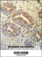Anti-CWC15 Rabbit Polyclonal Antibody (APC (Allophycocyanin))