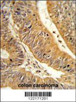 Anti-CXXC4 Rabbit Polyclonal Antibody (AP (Alkaline Phosphatase))