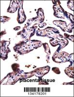 Anti-D19L4 Rabbit Polyclonal Antibody (HRP (Horseradish Peroxidase))