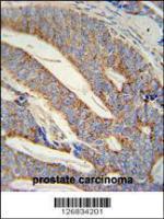 Anti-DACT1 Rabbit Polyclonal Antibody