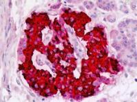 Immunohistochemical staining of paraffin embedded human insulin tissue using Insulin antibody (primary antibody at 1:200)